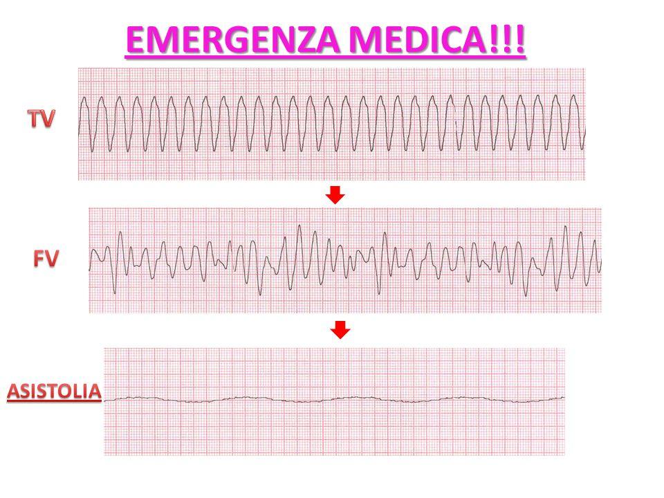 EMERGENZA MEDICA!!! TV FV ASISTOLIA