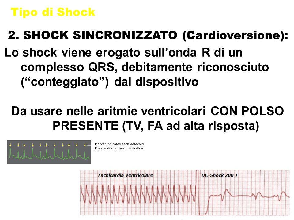 Tipo di Shock 2. SHOCK SINCRONIZZATO (Cardioversione):
