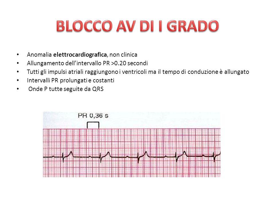 BLOCCO AV DI I GRADO Anomalia elettrocardiografica, non clinica