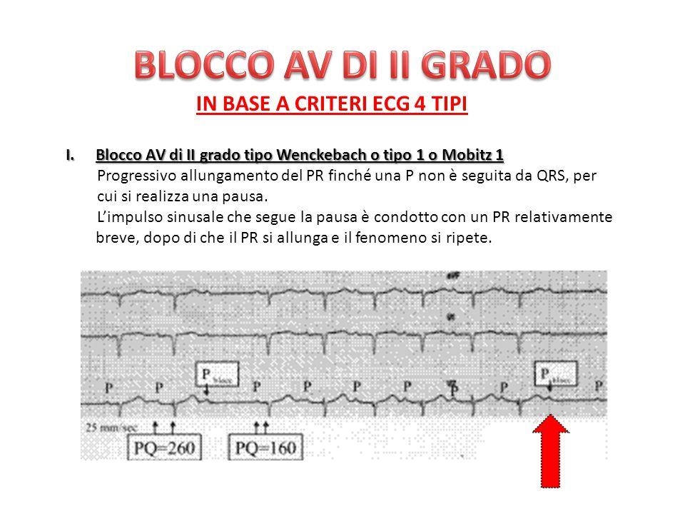 BLOCCO AV DI II GRADO IN BASE A CRITERI ECG 4 TIPI
