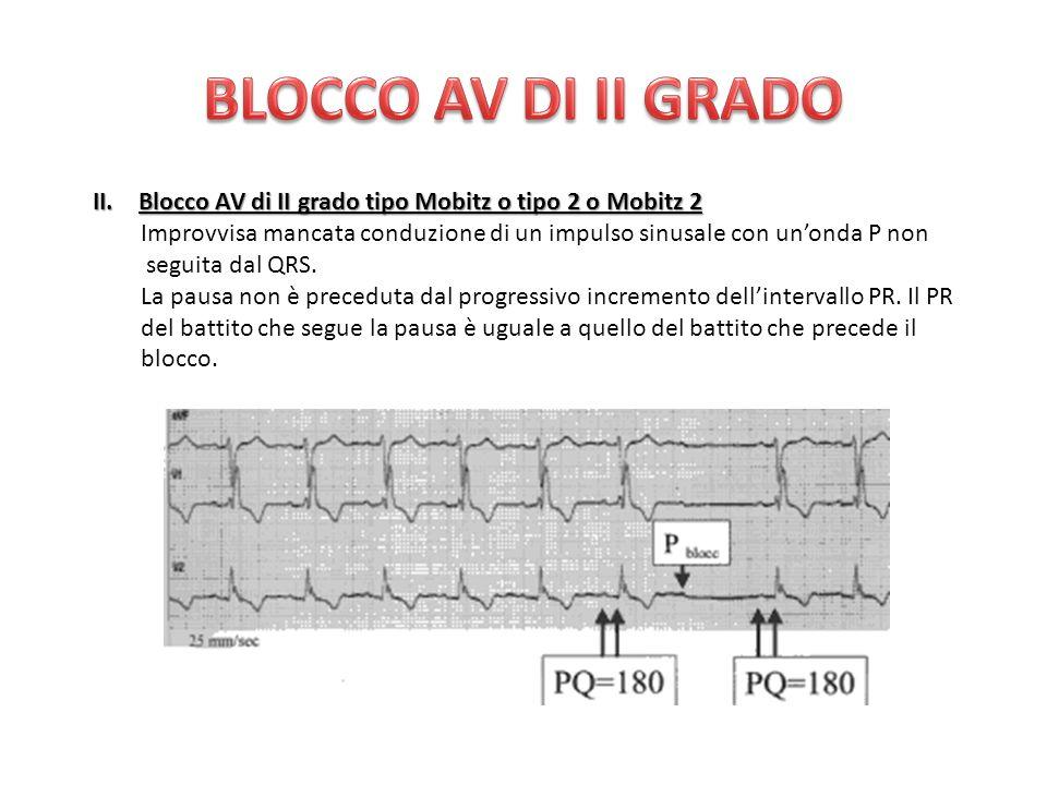 BLOCCO AV DI II GRADO Blocco AV di II grado tipo Mobitz o tipo 2 o Mobitz 2. Improvvisa mancata conduzione di un impulso sinusale con un'onda P non.