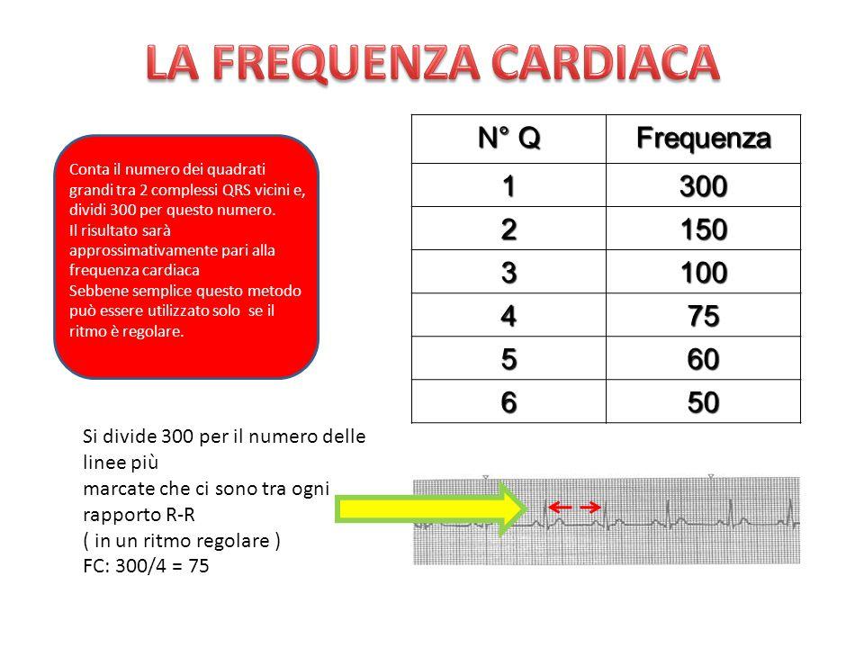 LA FREQUENZA CARDIACA N° Q Frequenza 1 300 2 150 3 100 4 75 5 60 6 50