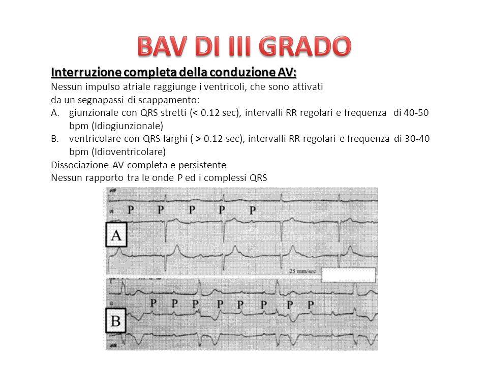 BAV DI III GRADO Interruzione completa della conduzione AV: