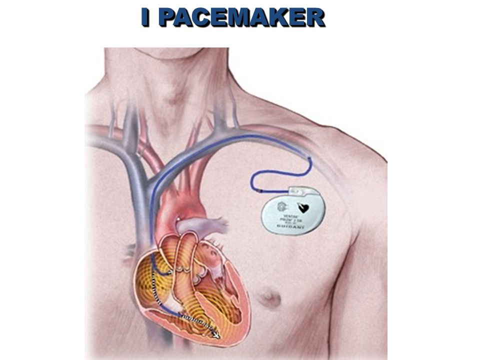 I PACEMAKER