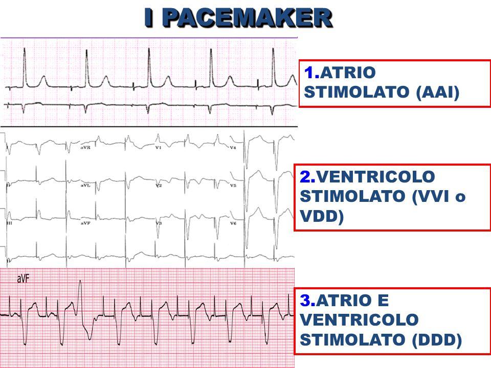 I PACEMAKER 1.ATRIO STIMOLATO (AAI) 2.VENTRICOLO STIMOLATO (VVI o VDD)