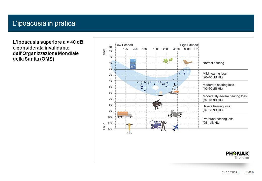 L ipoacusia in pratica L ipoacusia superiore a > 40 dB è considerata invalidante dall Organizzazione Mondiale della Sanità (OMS)