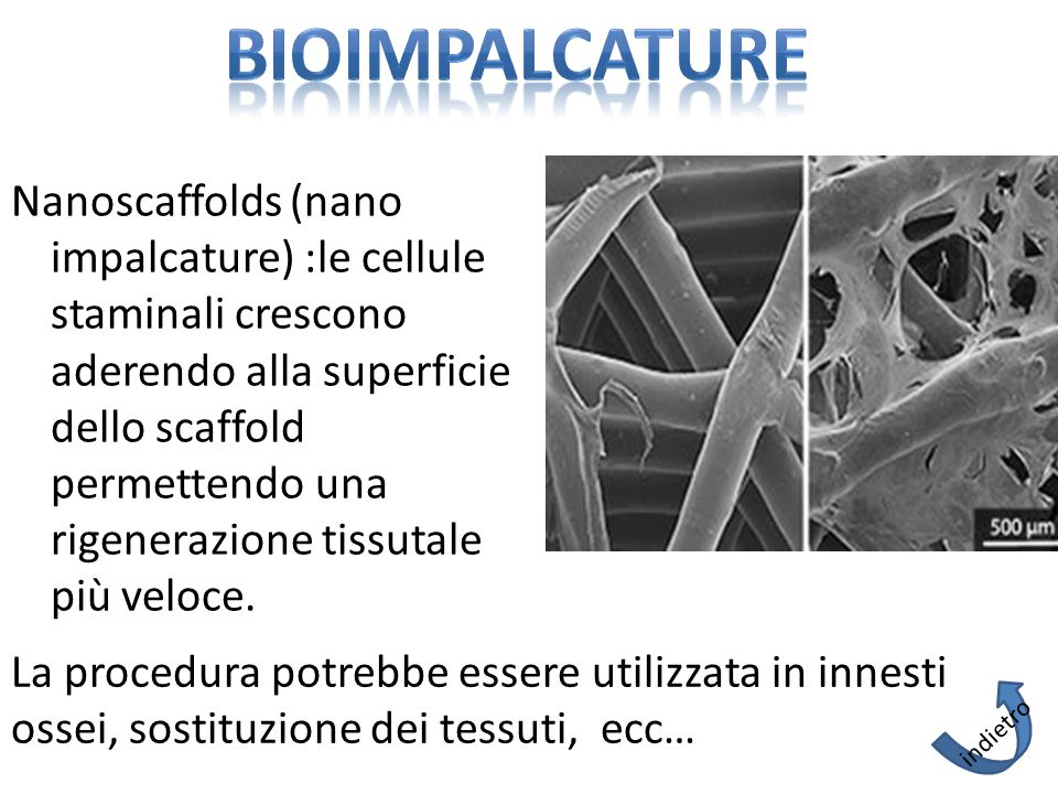 BIOIMPALCATURE