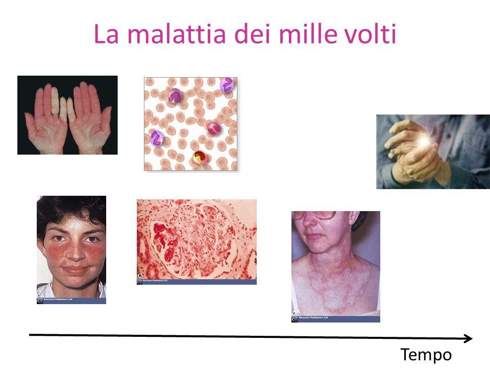 La malattia dei mille volti