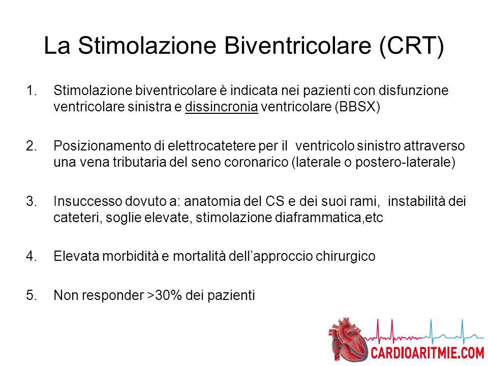 La Stimolazione Biventricolare (CRT)