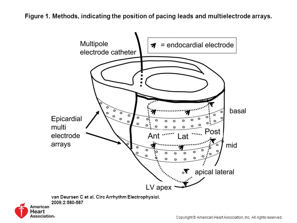 Figure 1. Methods, indicating the position of pacing leads and multielectrode arrays.