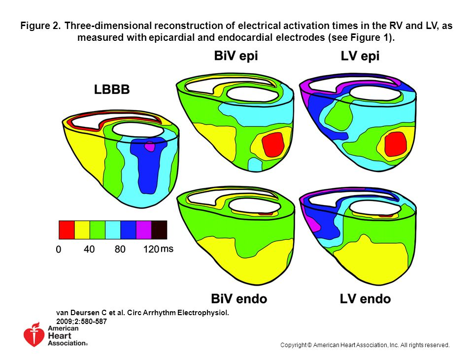 Figure 2. Three-dimensional reconstruction of electrical activation times in the RV and LV, as measured with epicardial and endocardial electrodes (see Figure 1).