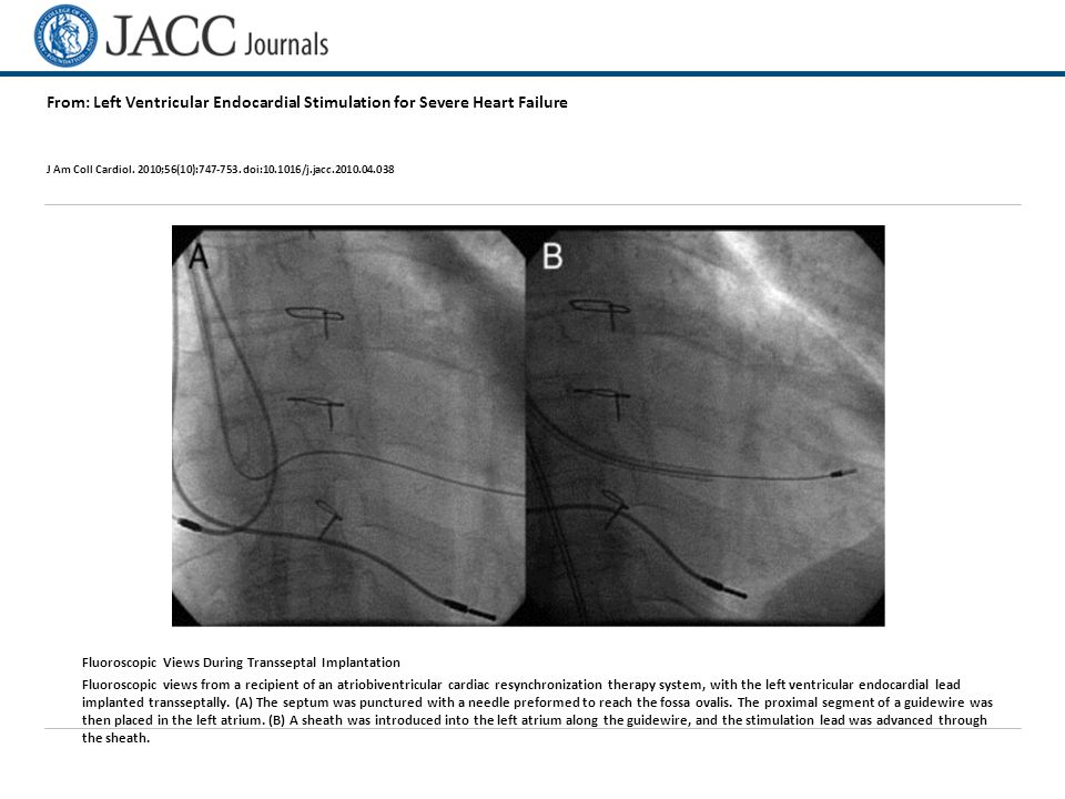 From: Left Ventricular Endocardial Stimulation for Severe Heart Failure