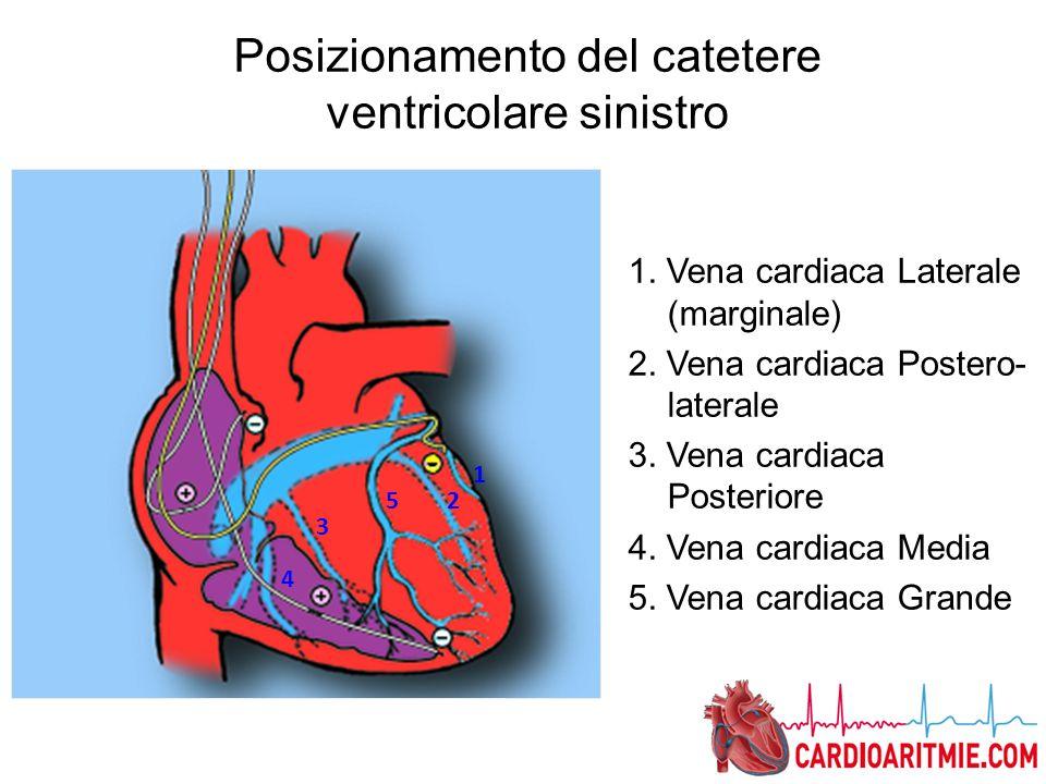Posizionamento del catetere ventricolare sinistro