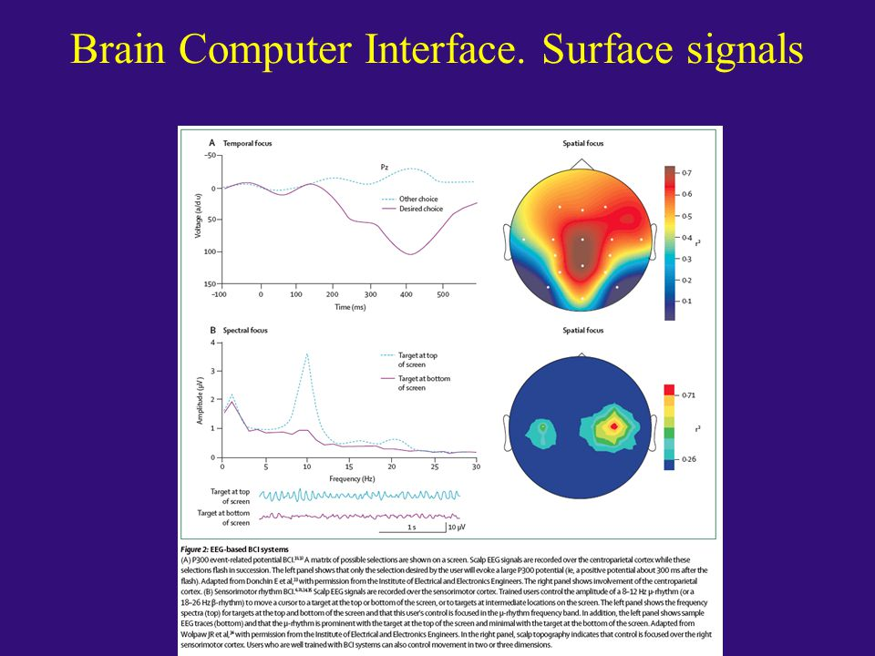 Brain Computer Interface. Surface signals