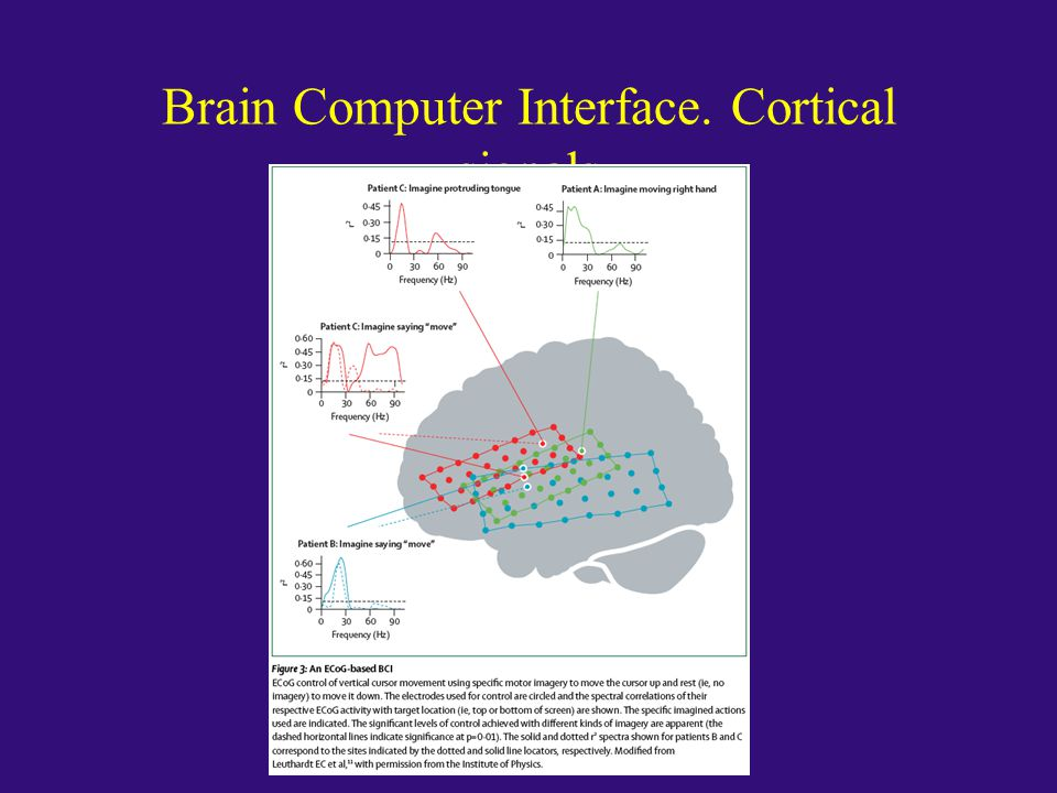 Brain Computer Interface. Cortical signals