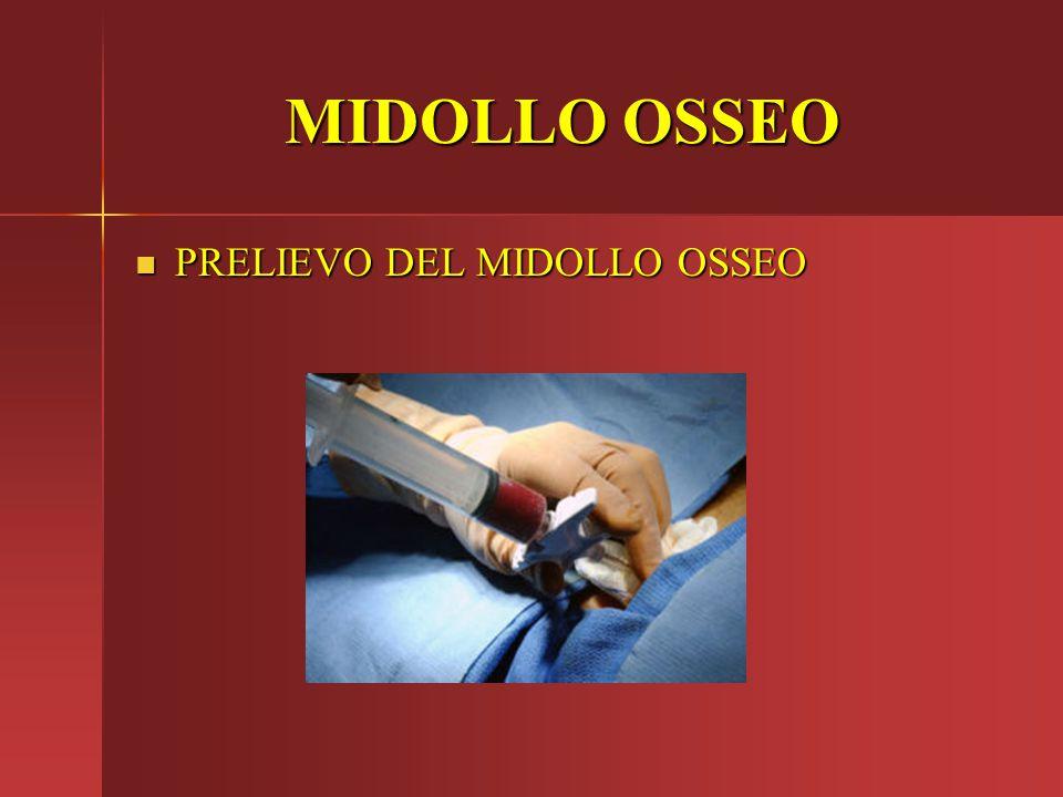 MIDOLLO OSSEO PRELIEVO DEL MIDOLLO OSSEO