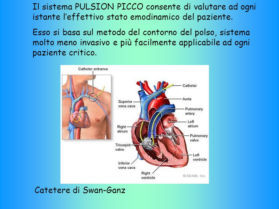 Il sistema PULSION PICCO consente di valutare ad ogni istante l'effettivo stato emodinamico del paziente.