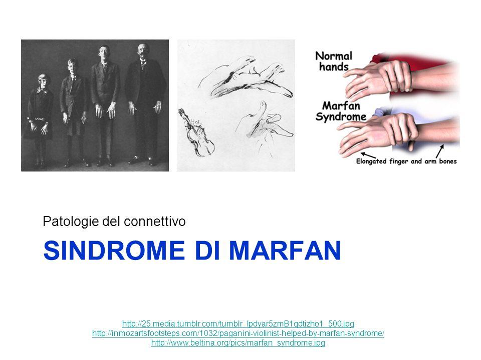 Sindrome di marfan Patologie del connettivo