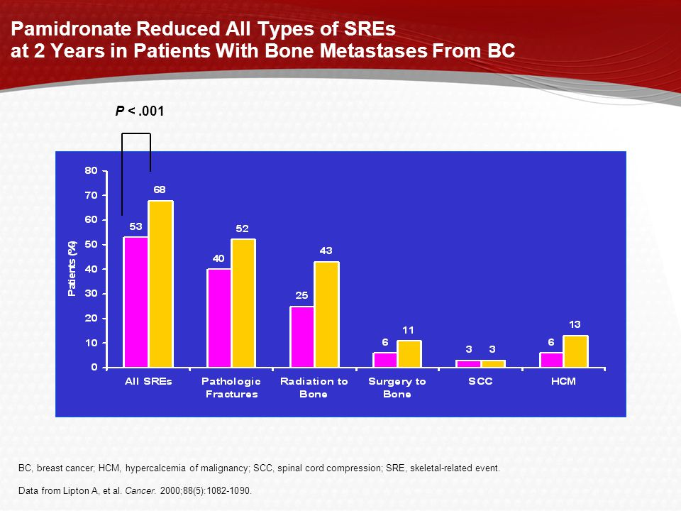 Pamidronate Reduced All Types of SREs at 2 Years in Patients With Bone Metastases From BC