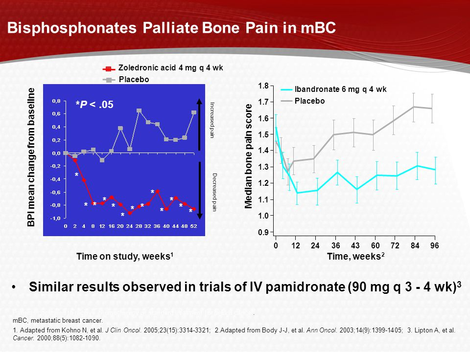 Bisphosphonates Palliate Bone Pain in mBC