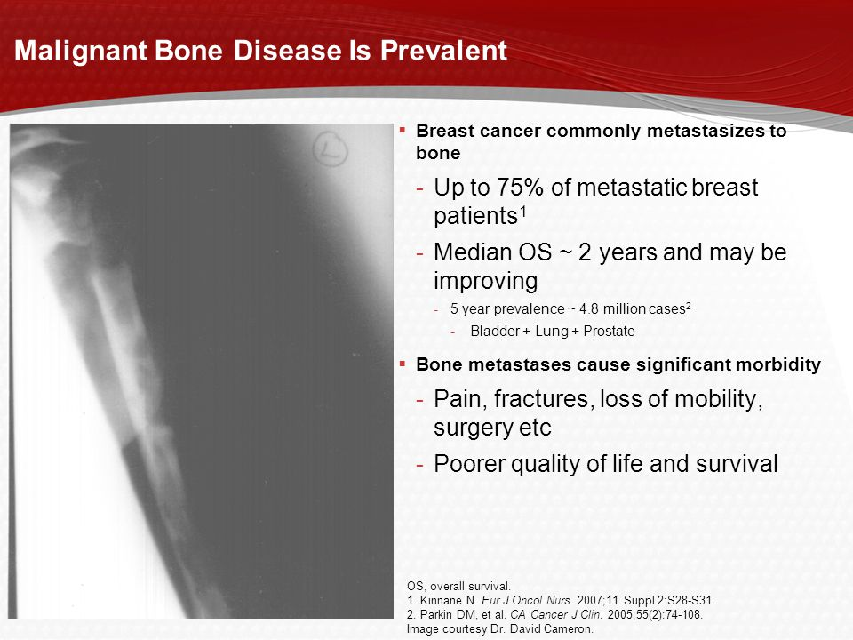 Malignant Bone Disease Is Prevalent
