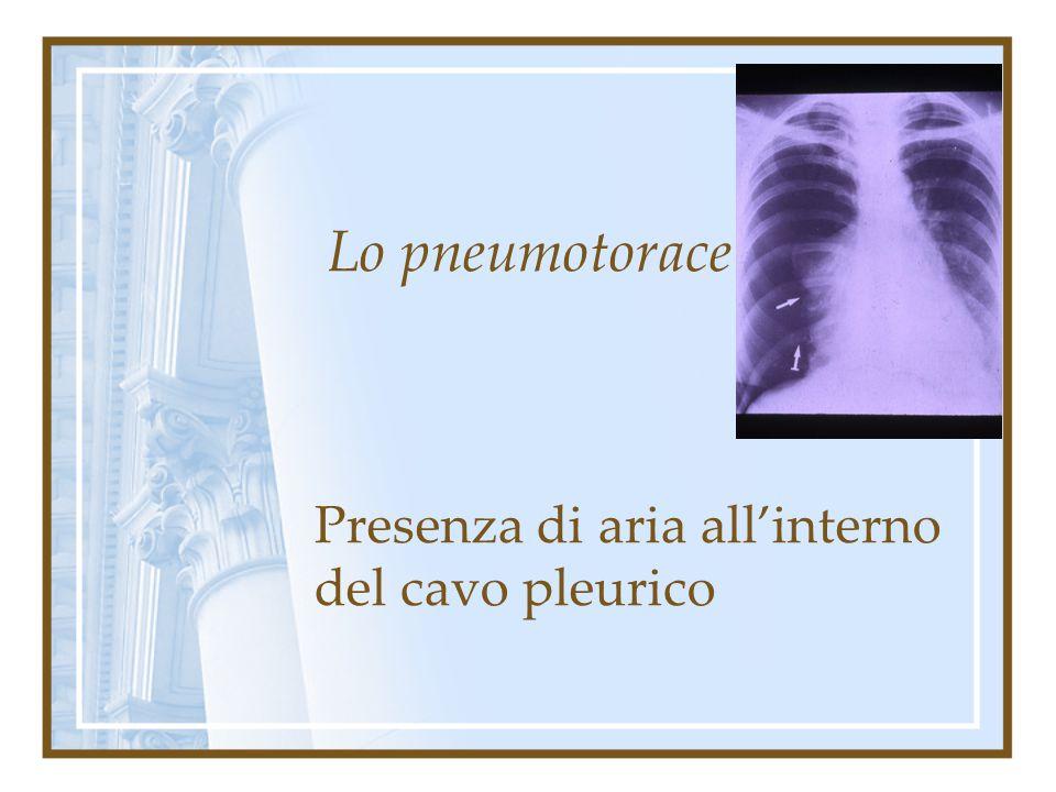 Presenza di aria all'interno del cavo pleurico
