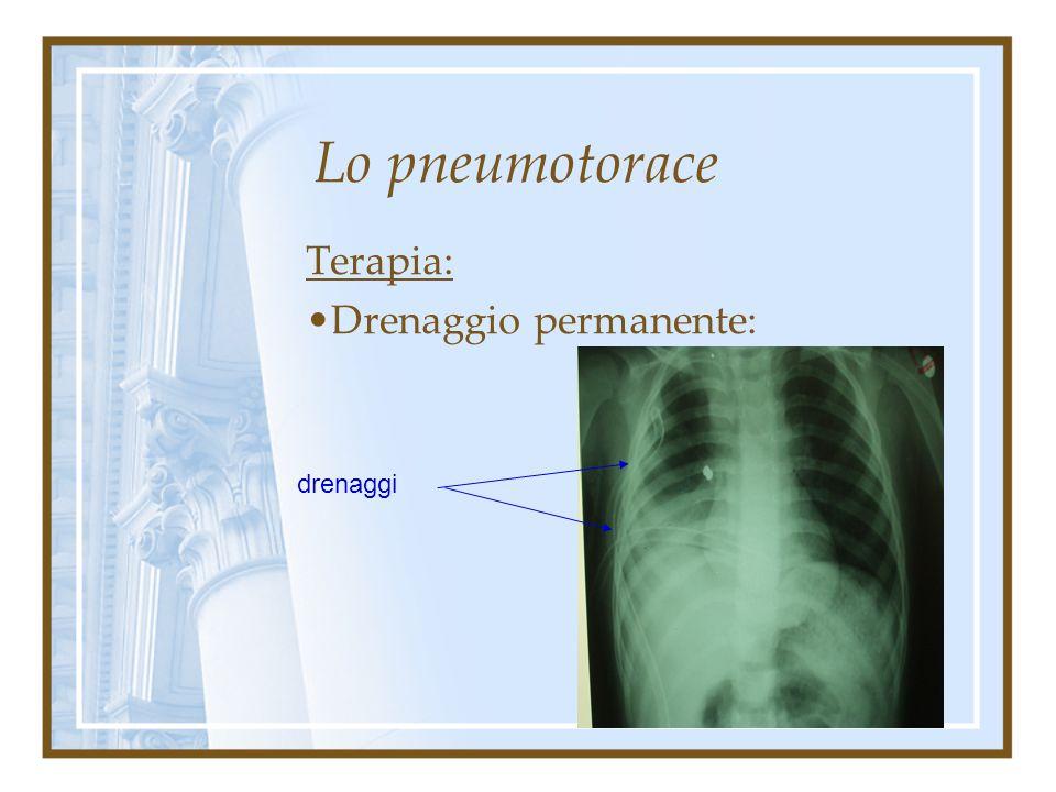 Terapia: Drenaggio permanente: