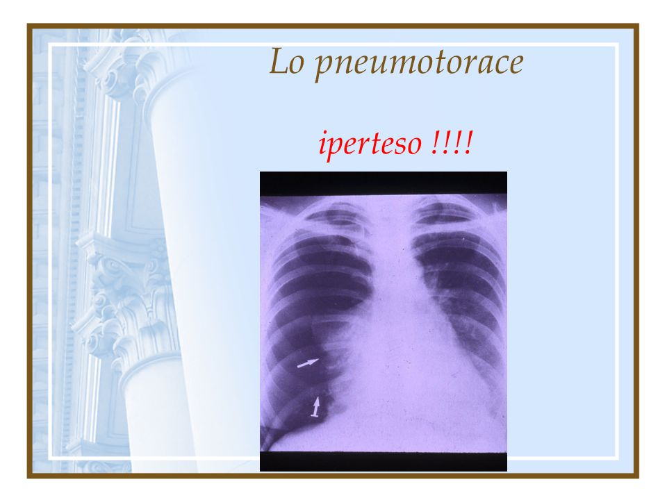 Lo pneumotorace iperteso !!!!