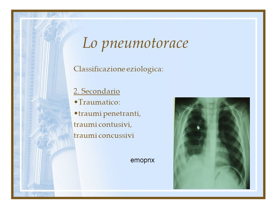 Lo pneumotorace Classificazione eziologica: 2. Secondario Traumatico: