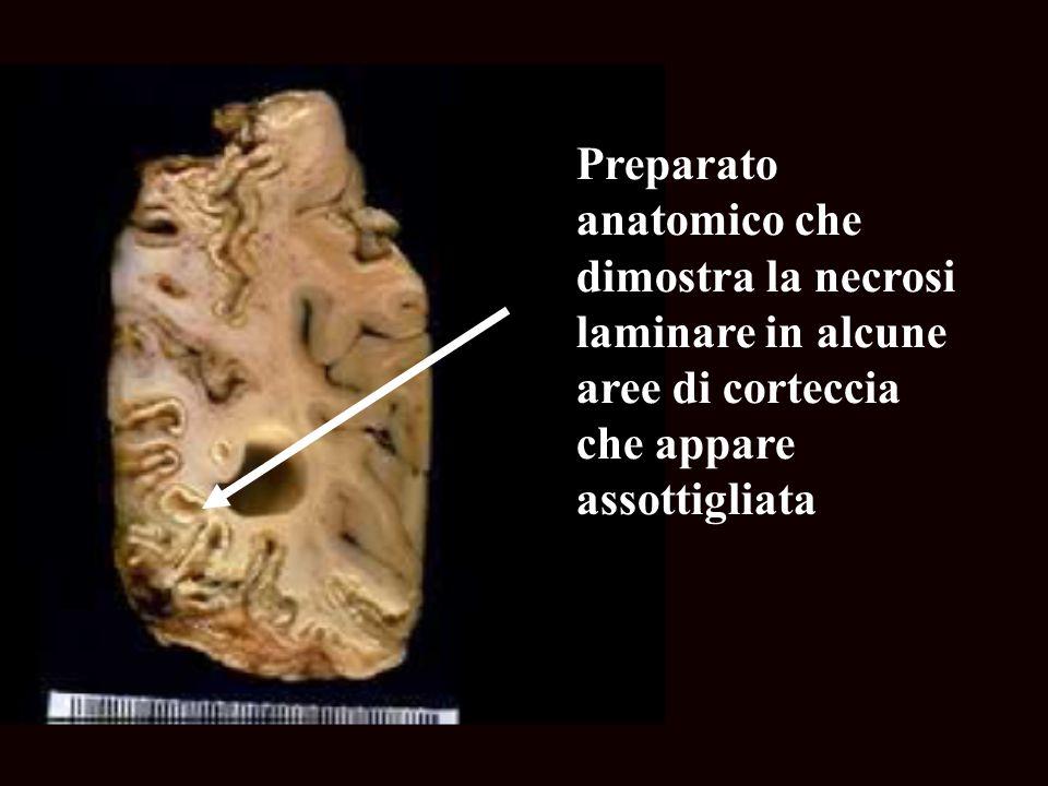 Preparato anatomico che dimostra la necrosi laminare in alcune