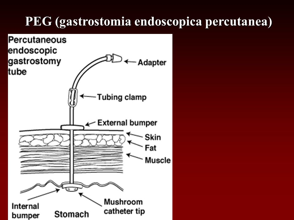 PEG (gastrostomia endoscopica percutanea)