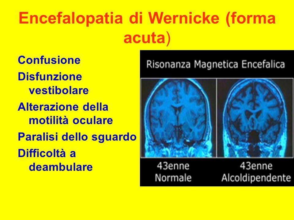 Encefalopatia di Wernicke (forma acuta)