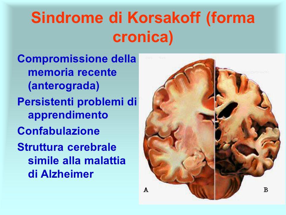Sindrome di Korsakoff (forma cronica)