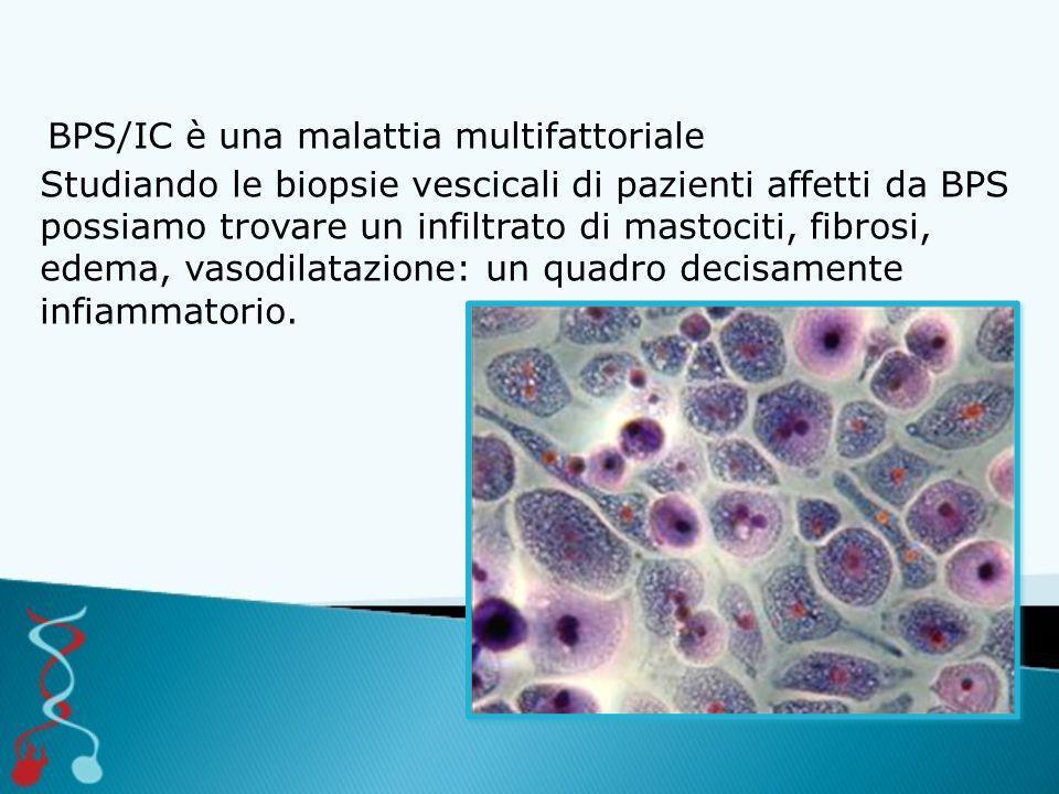 BPS/IC è una malattia multifattoriale Studiando le biopsie vescicali di pazienti affetti da BPS possiamo trovare un infiltrato di mastociti, fibrosi, edema, vasodilatazione: un quadro decisamente infiammatorio.