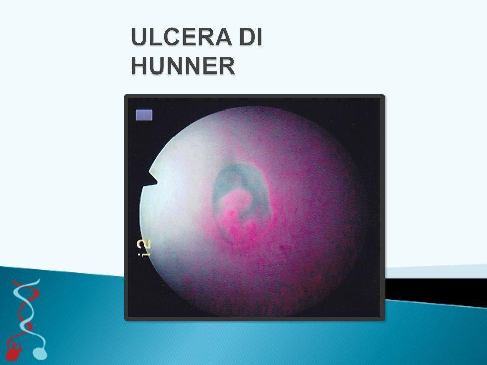 ULCERA DI HUNNER