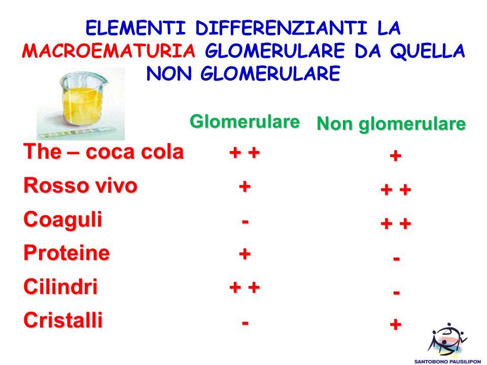 Non glomerulare The – coca cola + + + Rosso vivo + + + Coaguli -