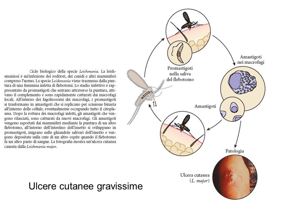 Ulcere cutanee gravissime