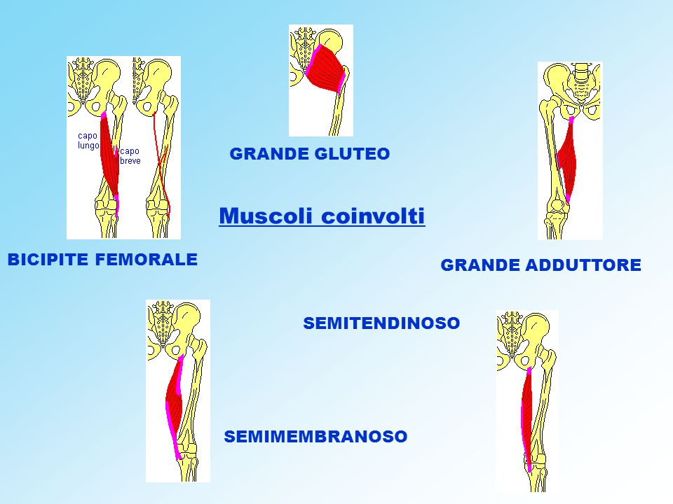 Muscoli coinvolti GRANDE GLUTEO BICIPITE FEMORALE GRANDE ADDUTTORE