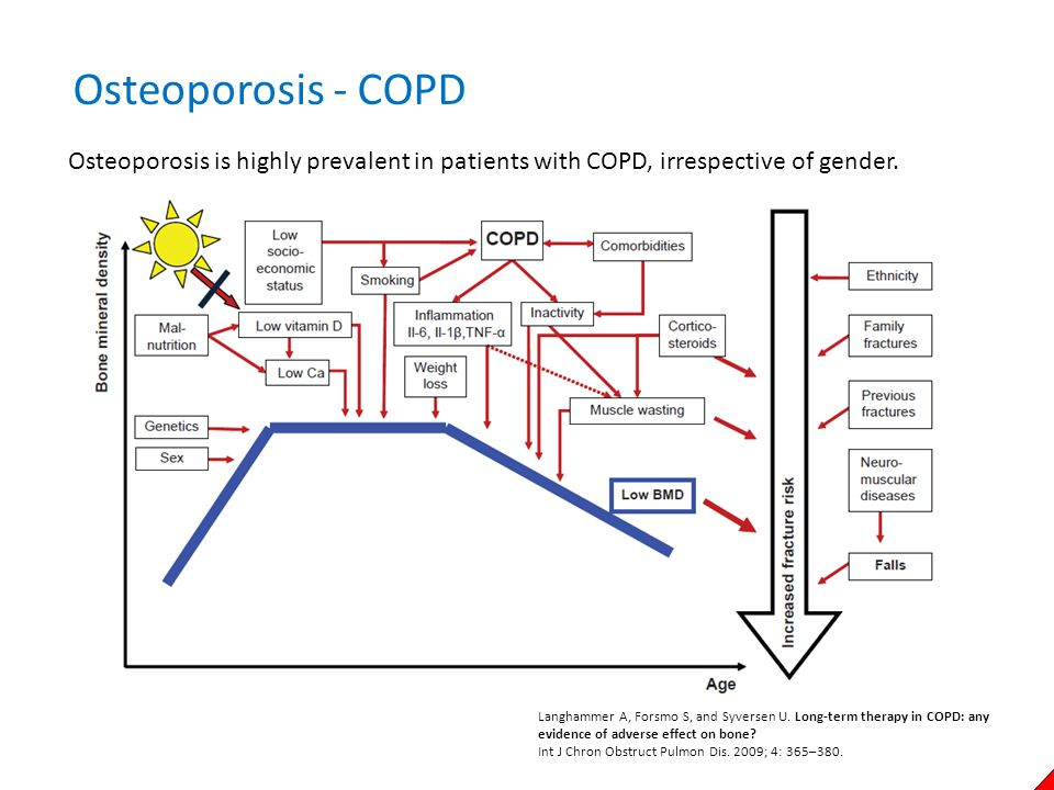 Osteoporosis - COPD Osteoporosis is highly prevalent in patients with COPD, irrespective of gender.