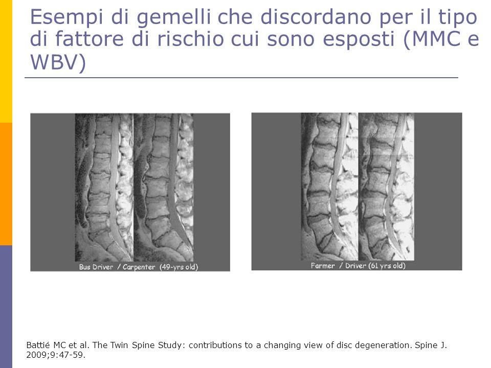 Esempi di gemelli che discordano per il tipo di fattore di rischio cui sono esposti (MMC e WBV)