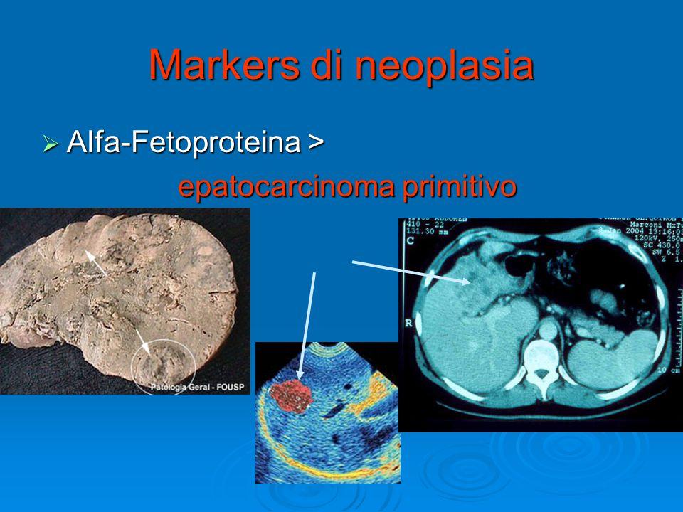 Markers di neoplasia Alfa-Fetoproteina > epatocarcinoma primitivo