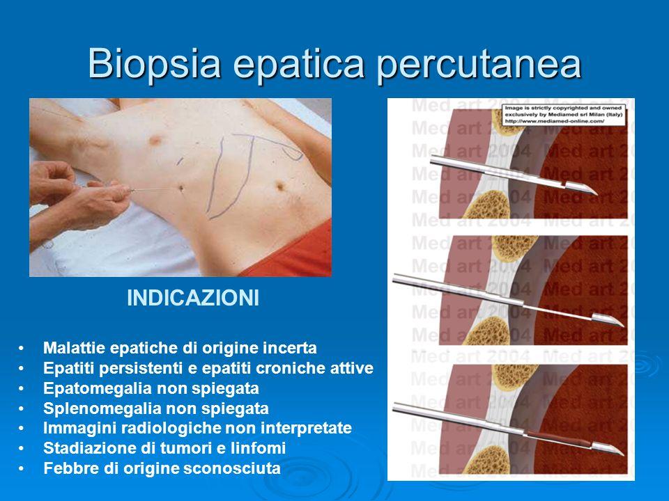 Biopsia epatica percutanea
