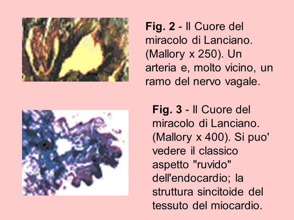 Fig. 2 - Il Cuore del miracolo di Lanciano. (Mallory x 250)