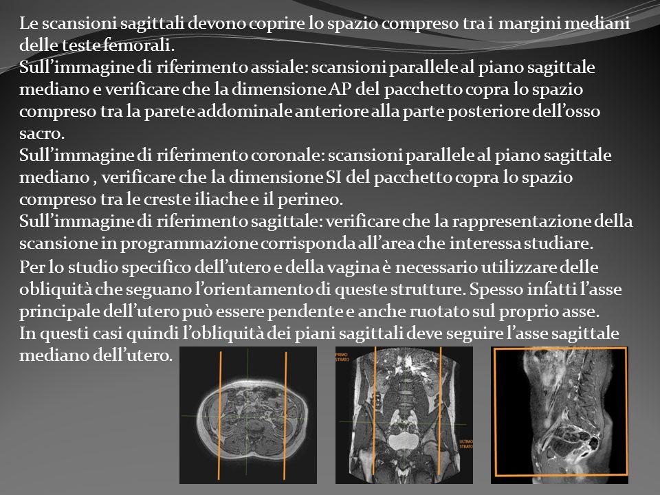 Le scansioni sagittali devono coprire lo spazio compreso tra i margini mediani delle teste femorali.