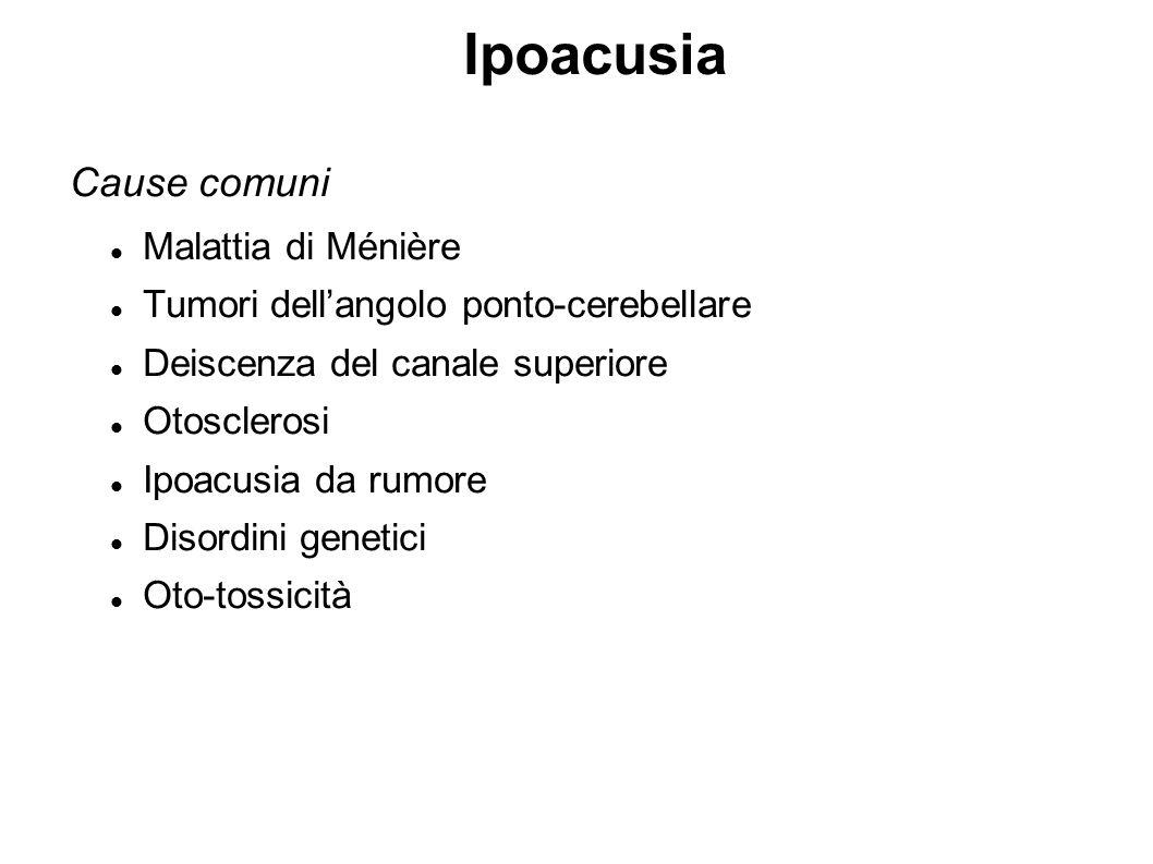 Ipoacusia Cause comuni Malattia di Ménière