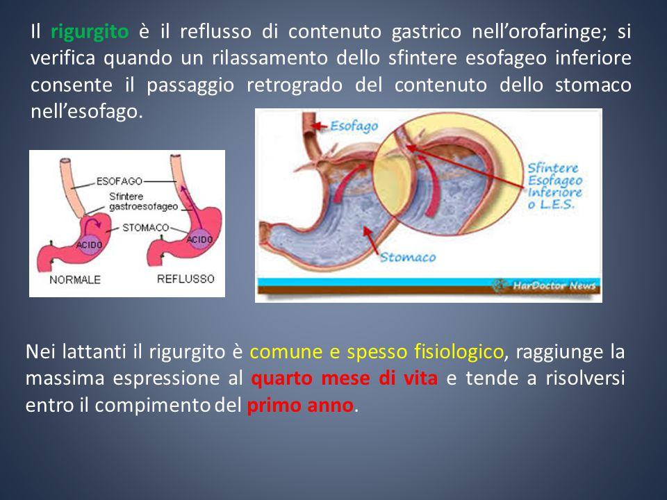 Il rigurgito è il reflusso di contenuto gastrico nell'orofaringe; si verifica quando un rilassamento dello sfintere esofageo inferiore consente il passaggio retrogrado del contenuto dello stomaco nell'esofago.