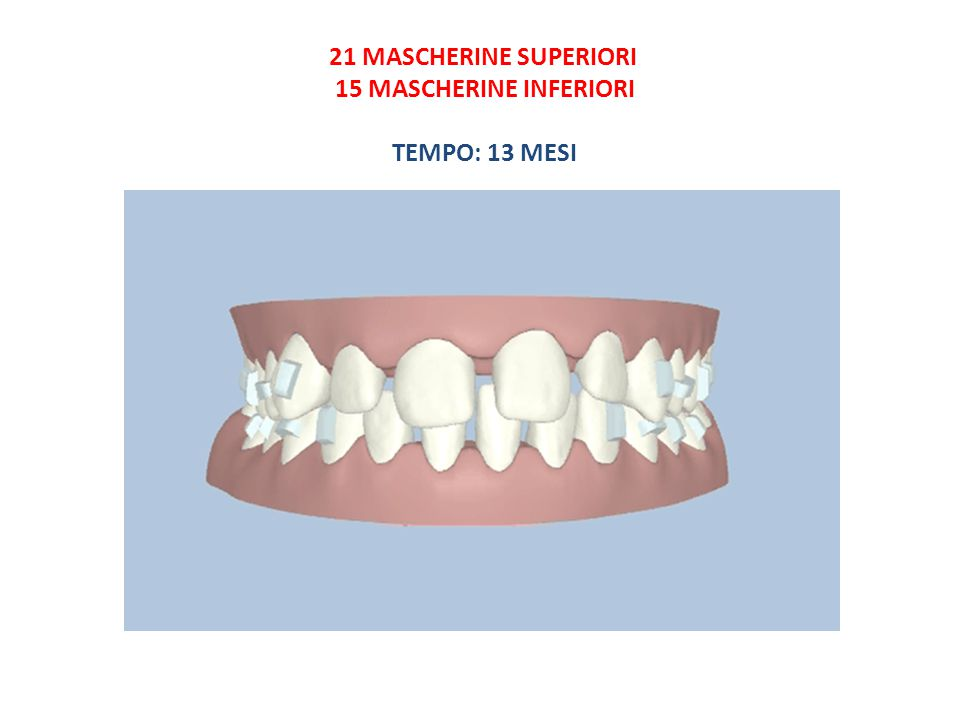 21 MASCHERINE SUPERIORI 15 MASCHERINE INFERIORI TEMPO: 13 MESI