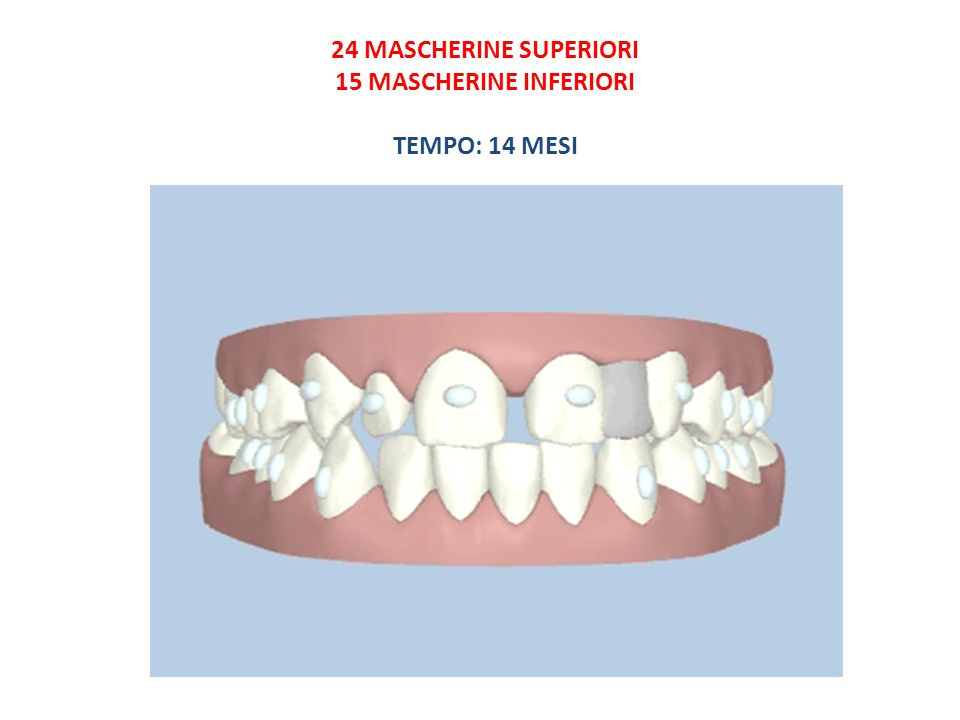 24 MASCHERINE SUPERIORI 15 MASCHERINE INFERIORI TEMPO: 14 MESI