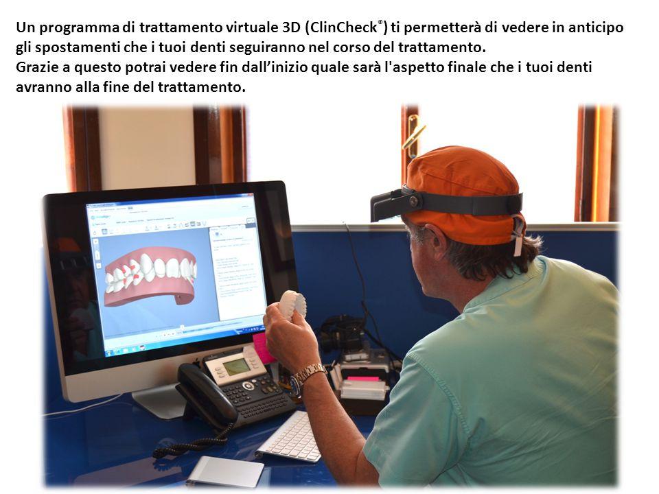 Un programma di trattamento virtuale 3D (ClinCheck®) ti permetterà di vedere in anticipo gli spostamenti che i tuoi denti seguiranno nel corso del trattamento.