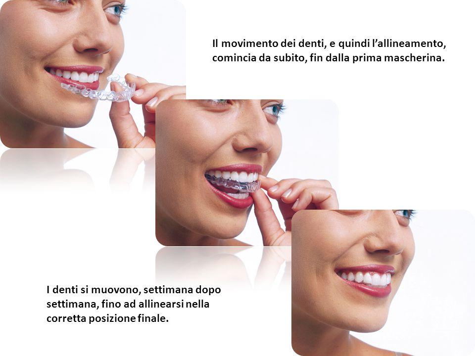 Il movimento dei denti, e quindi l'allineamento, comincia da subito, fin dalla prima mascherina.